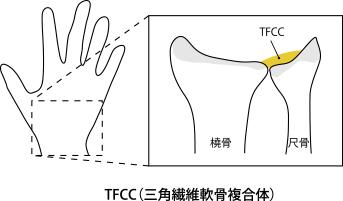 TFCC(三角繊維軟骨複合体)