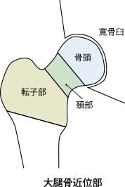 大腿骨近位部