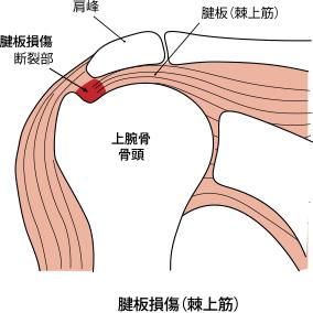 腱板損傷(棘上筋)