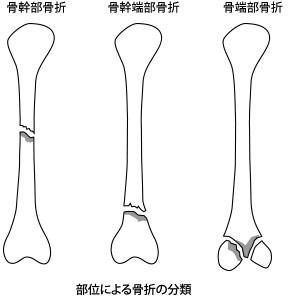 部位による骨折の分類