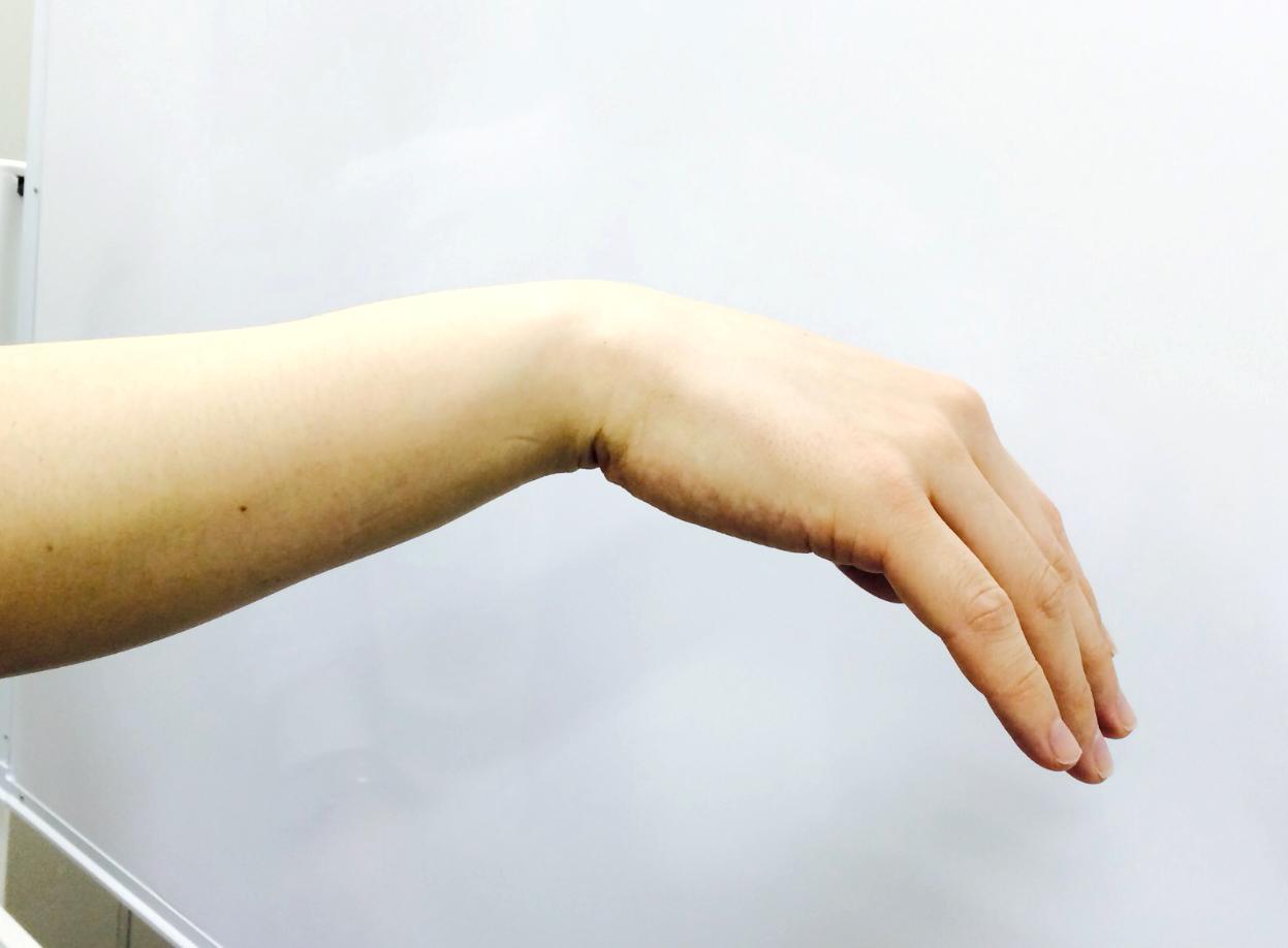 下垂手の症状